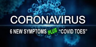 Six new Coronavirus symptoms plus COVID Toes